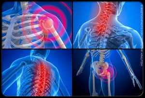 fibromyalgia-s1-photo-of-pain-locations
